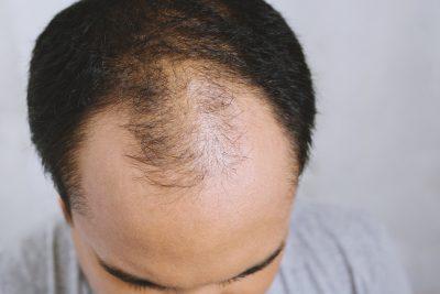 禿げた男性